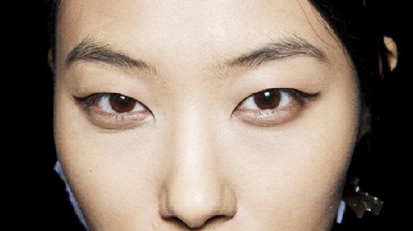 Mắt xếch có nên nhấn mí mắt không? – Chuyên gia tư vấn