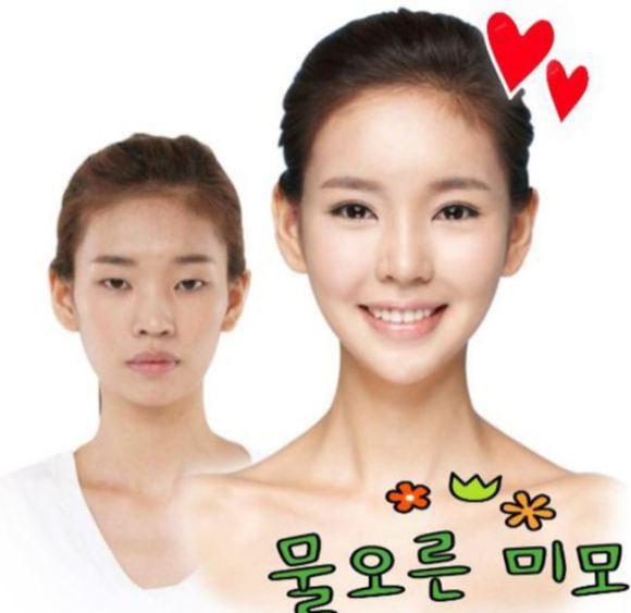 Tự tin với đôi mắt bấm mí Hàn Quốc 3