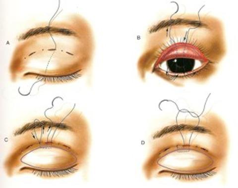 Cắt mí mắt có đau không? 1