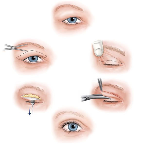Bước tiến lớn của ngành giải phẫu thẩm mỹ mắt  1