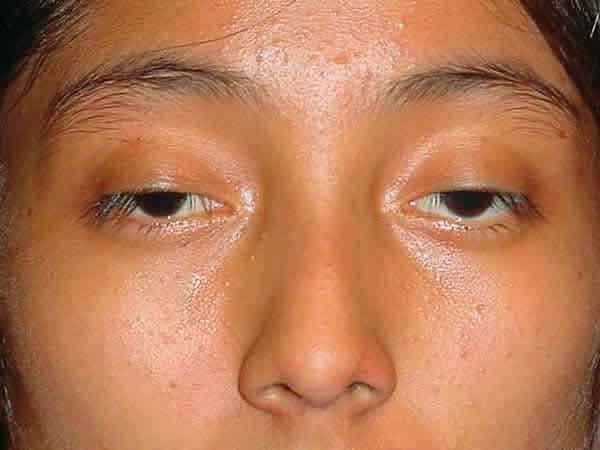 Phẫu thuật mắt sụp mí tạo mắt to tròn, 2 mí tự nhiên 1