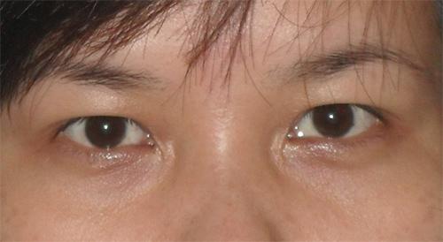 Tâm sự của cô nàng sụp mí mắt 1