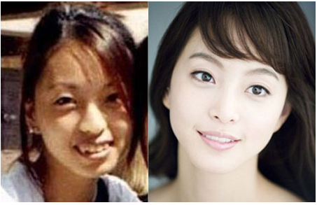 Phẫu thuật cắt mí mắt đẹp lung linh như Sao Hàn 3