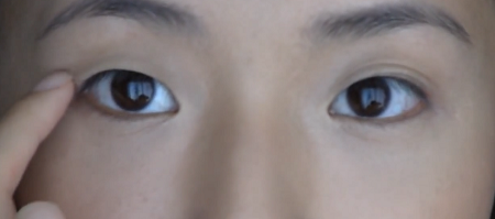 Có hay không phương pháp nhấn mí mắt vĩnh viễn? 1