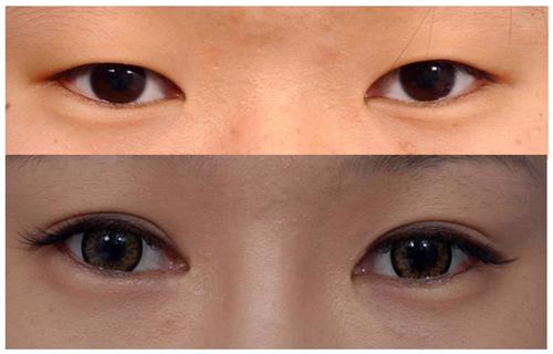 Thẩm mỹ mí mắt cho đôi mắt to tròn, long lanh 1