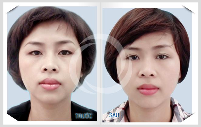 Tạo mắt 2 mí đẹp tự nhiên không phẫu thuật, tại sao không?1