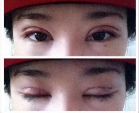 An toàn hiệu quả với phương pháp cắt mắt 2 mí Hàn Quốc1