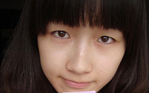 Nhấn mí Hàn Quốc để có mắt 2 mí tự nhiên1