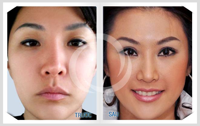 Đẹp rạng ngời với công nghệ thẩm mỹ mắt Hàn Quốc3