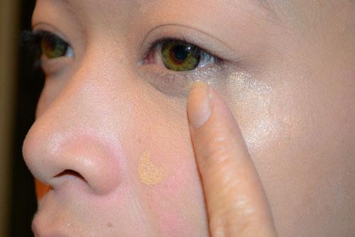 Cắt mí dưới an toàn theo công nghệ thẩm mỹ mắt Hàn Quốc 1