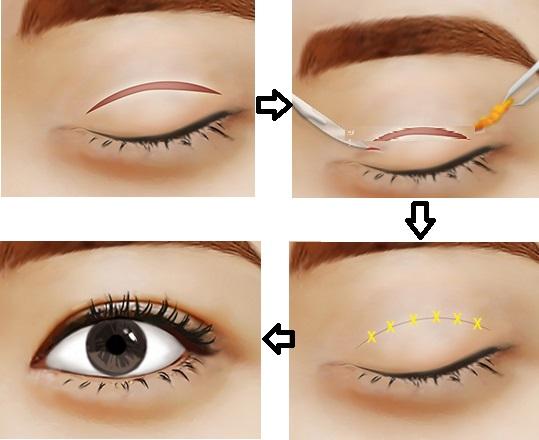 Có hay không phương pháp lấy mỡ mắt không phẫu thuật?1