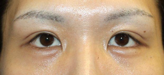 Giải pháp khắc phục tình trạng sụp mí mắt trái hiệu quả