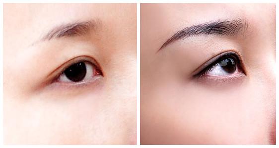 Kĩ thuật xăm mí mắt trên đẹp tự nhiên, đảm bảo an toàn