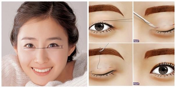 Cắt mí mắt Hàn Quốc cho đôi mắt đẹp và bừng sáng
