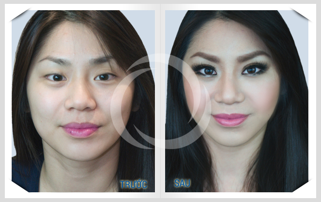 Đẹp rạng ngời với phương pháp cắt mí mắt Hàn Quốc