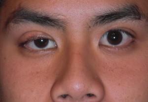 Giúp bạn hiểu hơn về hiện tượng sụp mí mắt