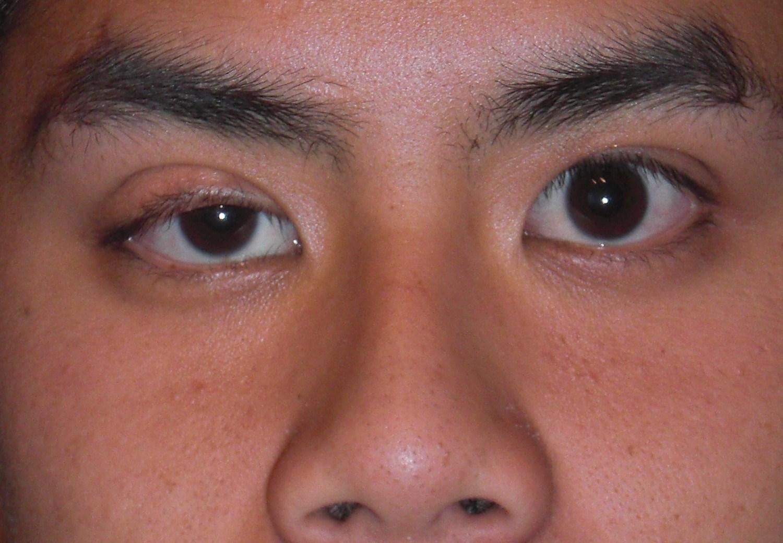 Giúp bạn hiểu hơn về hiện tượng sụp mí mắt 1