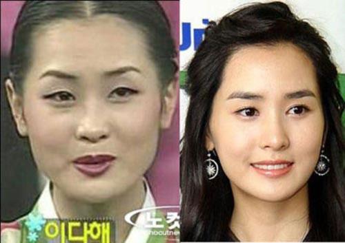 Học tập sao Hàn cắt mí mắt để có mắt đẹp như ý 3