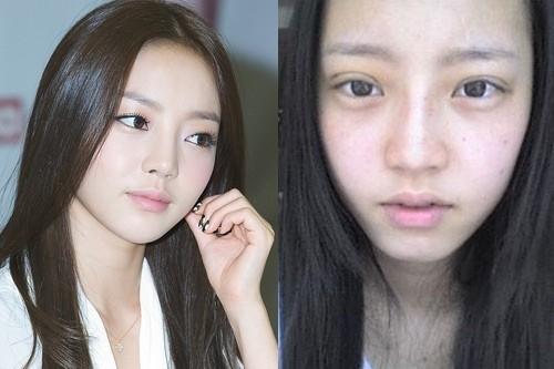 Học tập sao Hàn cắt mí mắt để có mắt đẹp như ý