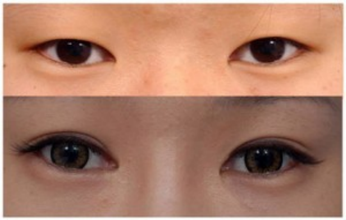 Sở hữu mắt 2 mí sau 15 - 20 phút với nhấn mí Hàn Quốc 1