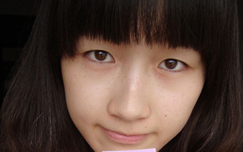 Đẹp tự nhiên với công nghệ thẩm mỹ mắt 2 mí Hàn Quốc 1