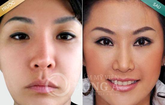 Kết quả sau cắt mí mắt