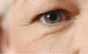 Phương pháp cắt da thừa mí mắt là như thế nào? Thực hiện có đau không?