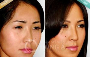 Hình ảnh trước sau lấy mỡ mí mắt tại TMV Đông Á