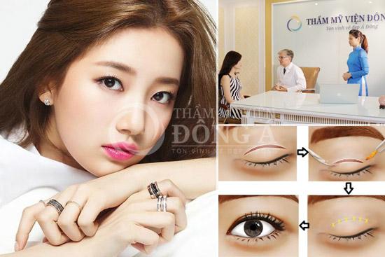 Sự khác biệt vượt trội của các phương pháp thẩm mỹ mắt Hàn Quốc 1