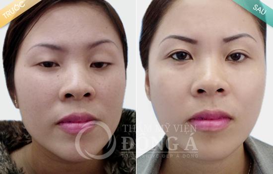 Sự khác biệt vượt trội của các phương pháp thẩm mỹ mắt Hàn Quốc 3