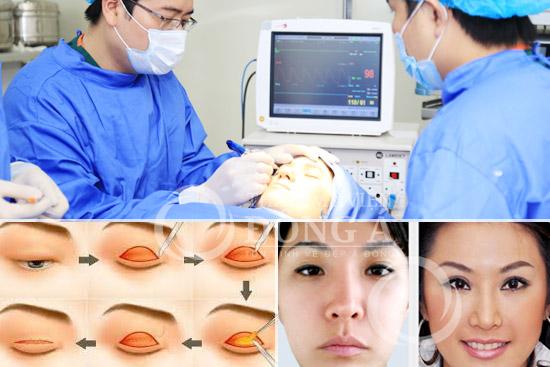 Phẫu thuật lấy bọng mỡ mắt để có mắt 2 mí to đẹp, trẻ trung 2