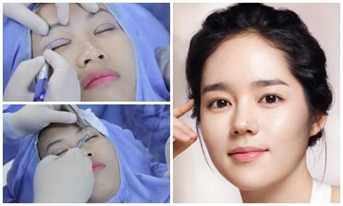 Giới trẻ phát cuồng với phương pháp bấm mí Hàn Quốc 2