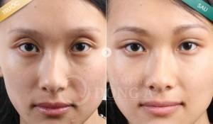 Hình ảnh trước sau cắt mí mắt tại TMV Đông Á