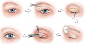 Chuyên gia tư vấn: Chữa sụp mí mắt có đau không?