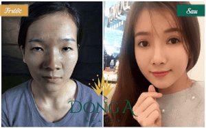 Hình ảnh trước và sau thẩm mỹ mắt tại TMV Đông Á
