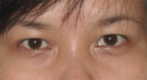 Mắt sụp mí nhiều phải làm sao đây?