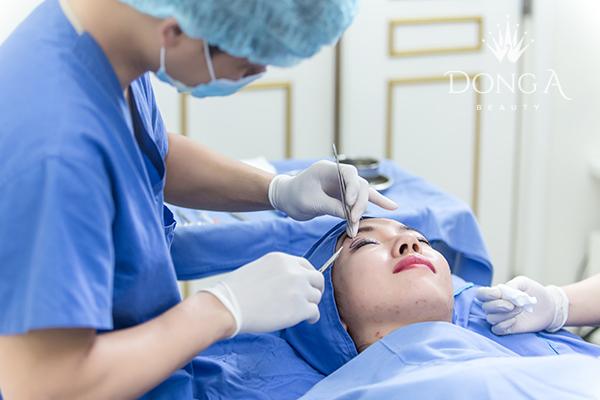 Zoom cận cảnh kết quả cắt mí mắt sau 4 tuần thực hiện của khách hàng