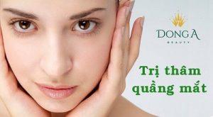 9 cách trị thâm quầng mắt hiệu quả nhất hiện nay