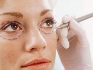 Bọng mỡ mắt to nên lấy mỡ hay cắt mí tốt hơn?