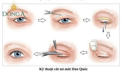 """""""Cắt mí mắt giữ được bao lâu?"""", chuyên gia trả lời"""