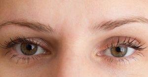 Nâng cơ mí mắt giải pháp DUY NHẤT cho người bị sụp mí mắt