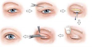Cắt mí mắt tuy chỉ là tiểu phẫu nhưng phải cẩn thận để tránh biến chứng