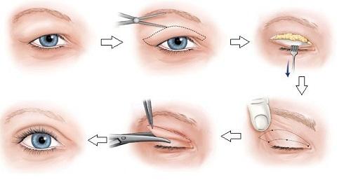 Cắt mí mắt tuy chỉ là tiểu phẫu nhưng phải cẩn thận để tránh biến chứng 1