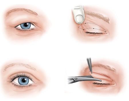 Cắt mí mắt có đau không thưa chuyên gia? Câu trả lời khiến bạn bất ngờ 1