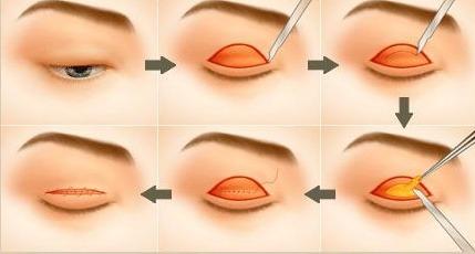 Phẫu thuật lấy mỡ mí mắt có đau không? Chuyên gia giải đáp 2