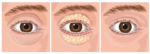 Phẫu thuật lấy mỡ mí mắt có đau không? Chuyên gia giải đáp 3
