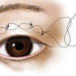 Bấm mí mắt là gì? Mắt 1 mí có thực hiện bấm mí được không?