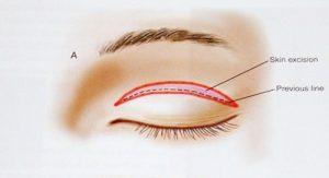 Cắt mí mắt có để lại sẹo mất thẩm mỹ không? Chuyên gia giải đáp